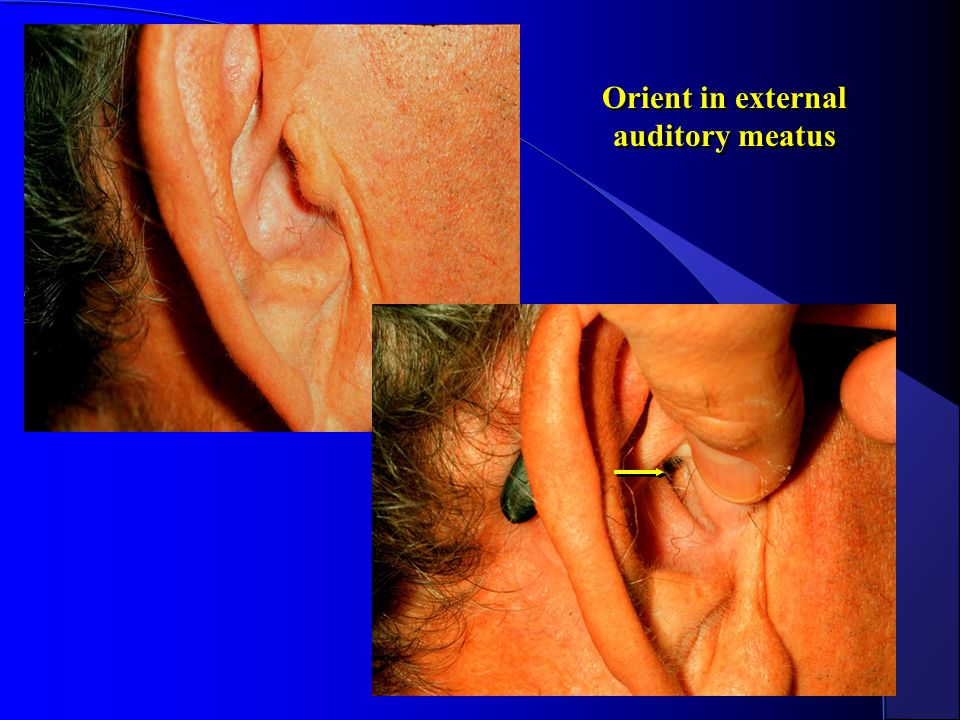 Orient in external auditory meatus