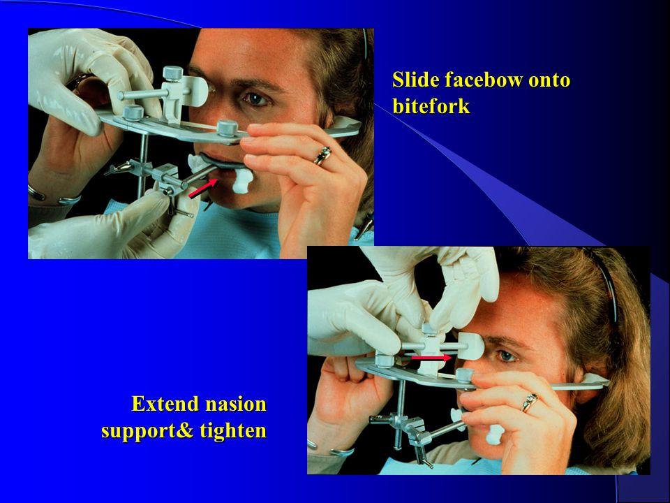 Slide facebow onto bitefork Extend nasion support& tighten