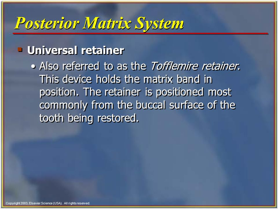 Copyright 2003, Elsevier Science (USA). All rights reserved. Posterior Matrix System  Universal retainer Also referred to as the Tofflemire retainer.