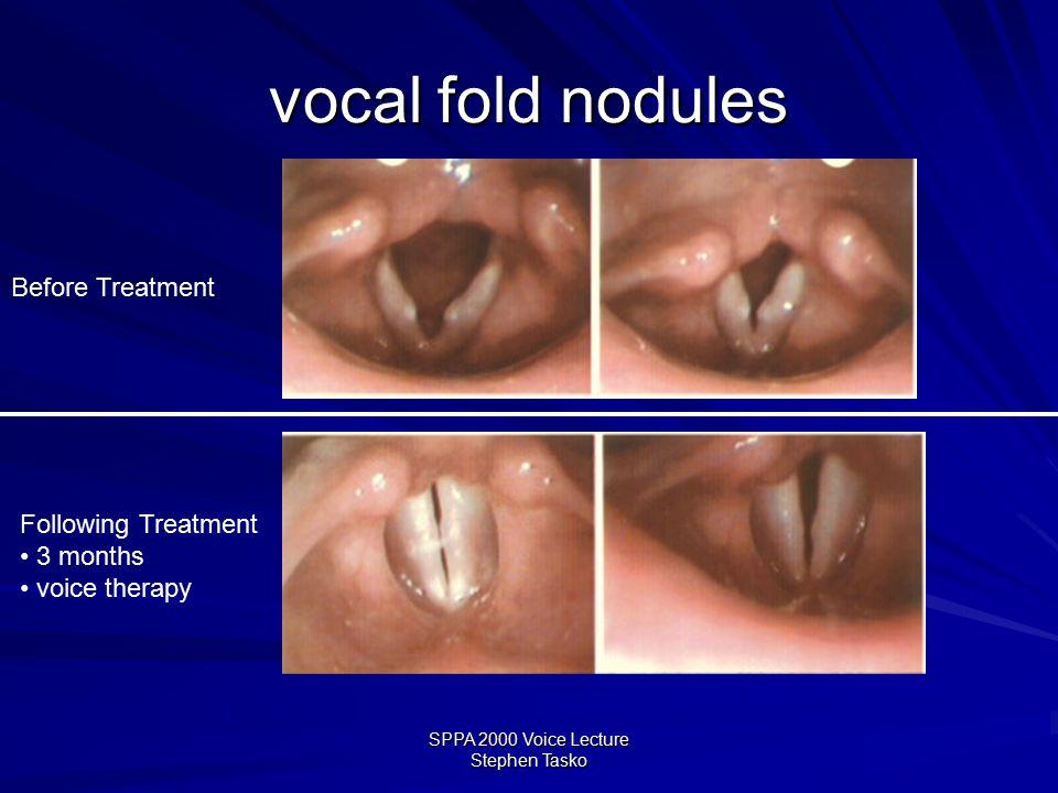 SPPA 2000 Voice Lecture Stephen Tasko Laryngitis