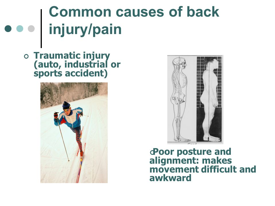 Common causes of back injury/pain Traumatic injury (auto, industrial or sports accident) Poor posture and alignment: makes movement difficult and awkw