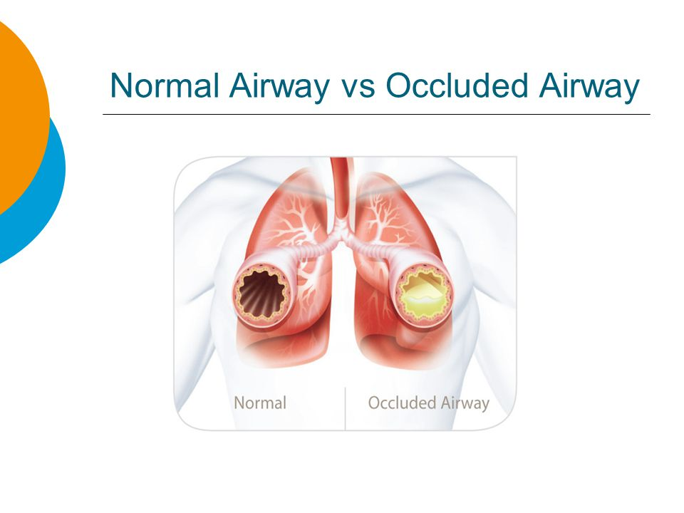 Normal Airway vs Occluded Airway