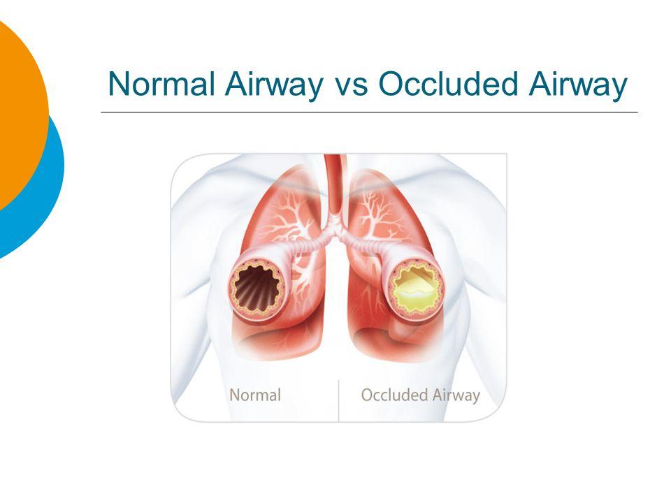 Long-Term Asthma Medication Advair is a common long-term asthma medication taken daily to help control asthma symptoms.