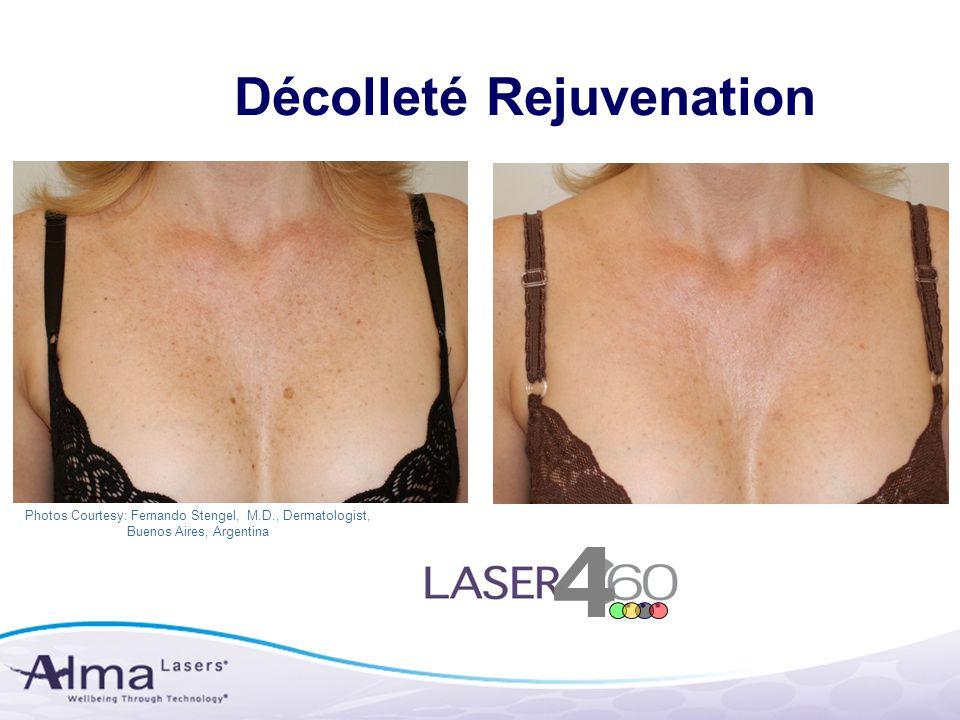 Photos Courtesy: Fernando Stengel, M.D., Dermatologist, Buenos Aires, Argentina Décolleté Rejuvenation 4