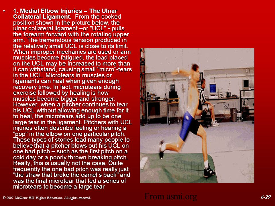 © 2007 McGraw-Hill Higher Education. All rights reserved. 6-29 1. Medial Elbow Injuries – The Ulnar Collateral Ligament. From the cocked position show
