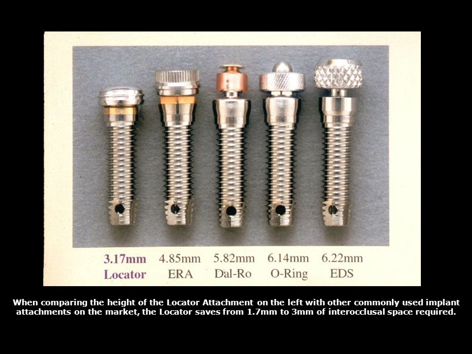When comparing the height of the Locator Attachment on the left with other commonly used implant attachments on the market, the Locator saves from 1.7