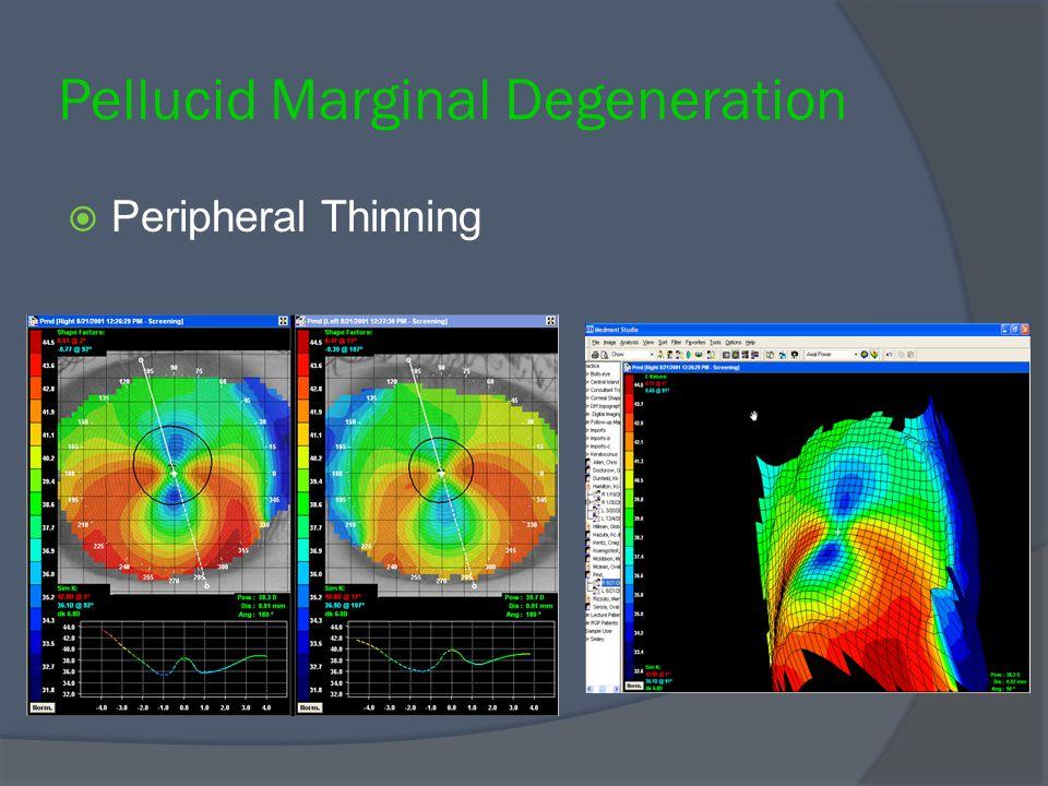 Pellucid Marginal Degeneration  Peripheral Thinning