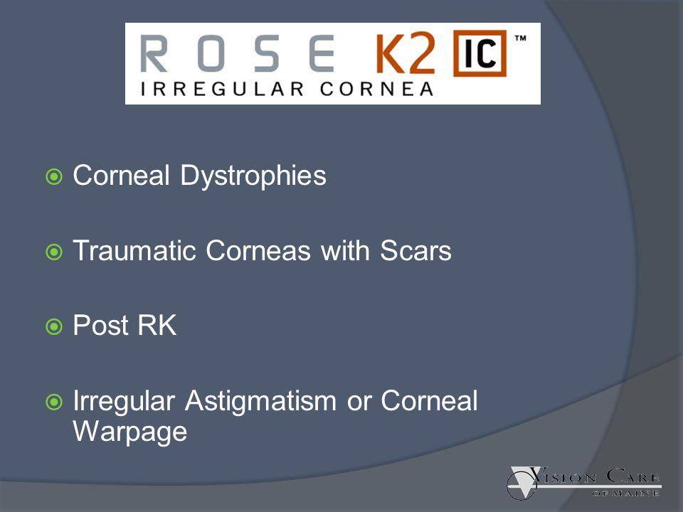  Corneal Dystrophies  Traumatic Corneas with Scars  Post RK  Irregular Astigmatism or Corneal Warpage