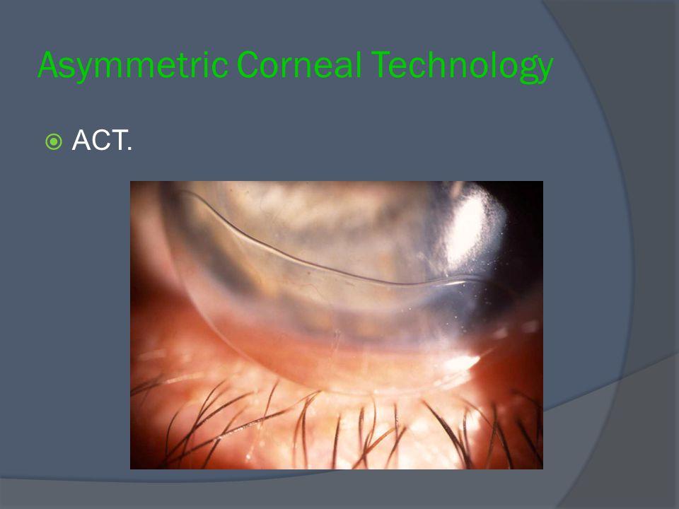 Asymmetric Corneal Technology  ACT.