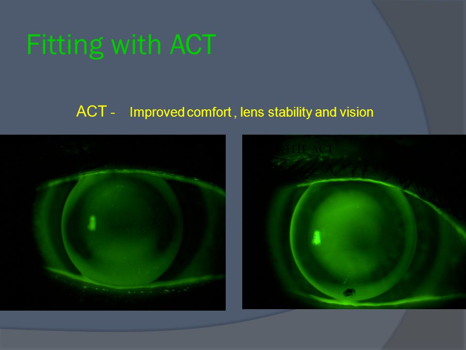 NO ACT WITH ACT ACT - Improved comfort, lens stability and vision Fitting with ACT
