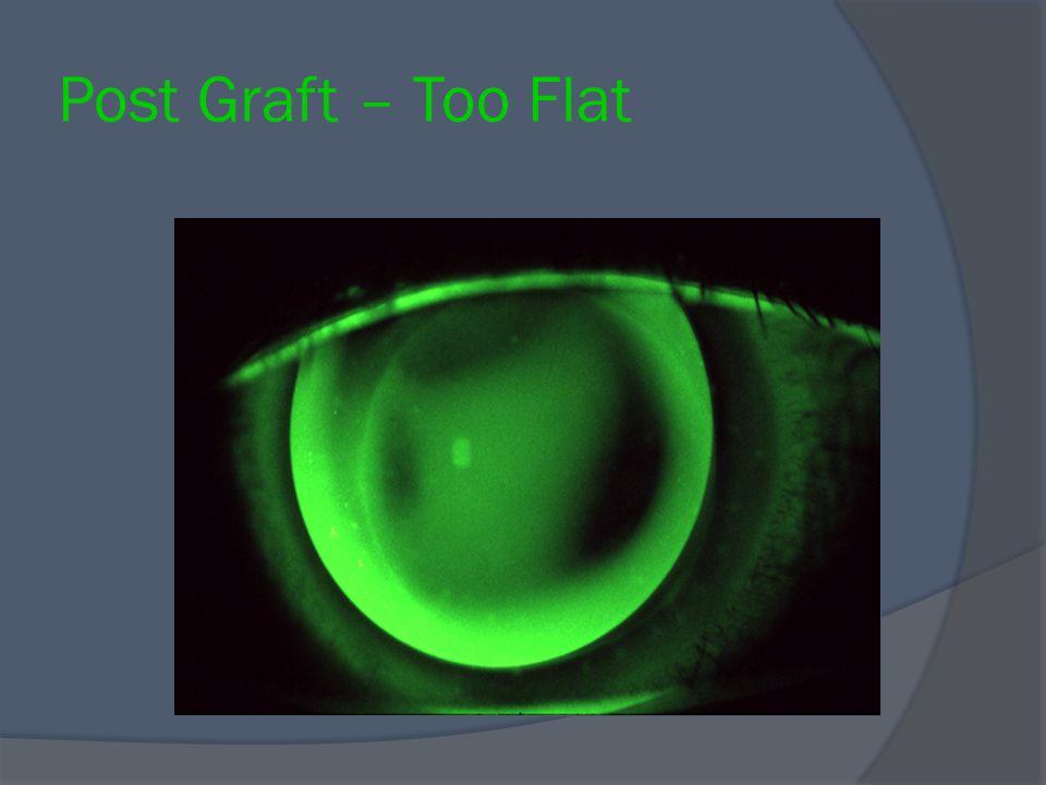Post Graft – Too Flat