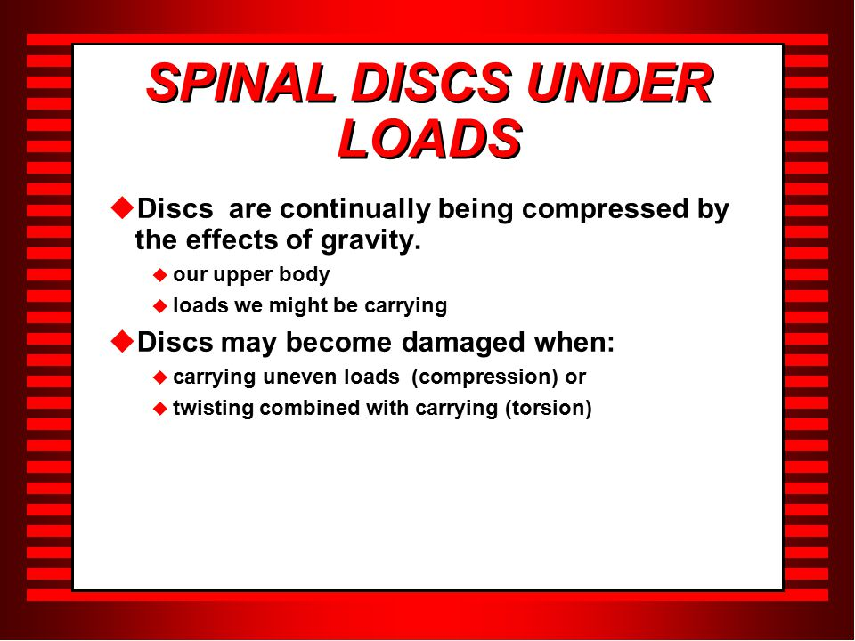 SPINAL DISCS UNDER LOADS  Discs are continually being compressed by the effects of gravity.