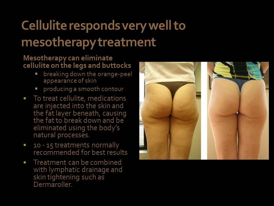 Cellulite responds very well to mesotherapy treatment Mesotherapy can eliminate cellulite on the legs and buttocks  breaking down the orange-peel appearance of skin  producing a smooth contour  To treat cellulite, medications are injected into the skin and the fat layer beneath, causing the fat to break down and be eliminated using the body's natural processes.