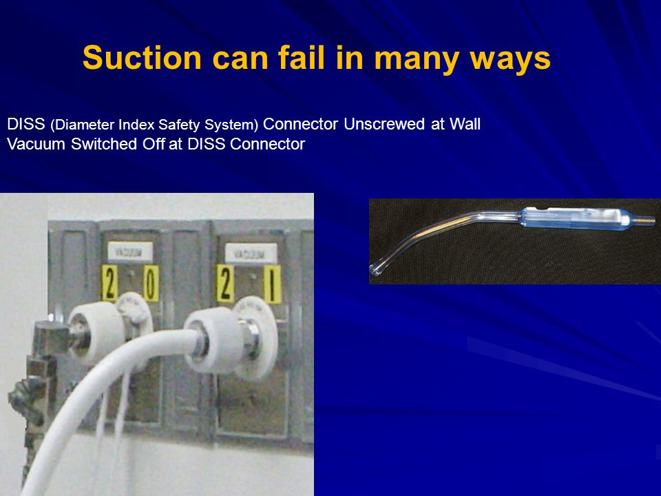 Suction can fail in many ways DISS (Diameter Index Safety System) Connector Unscrewed at Wall Vacuum Switched Off at DISS Connector