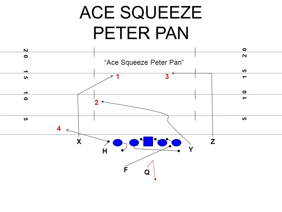 ACE SQUEEZE PETER PAN X F H Q Z Y 5 1 0 1 5 2 0 1 5 1 0 5 Ace Squeeze Peter Pan 31 2 4