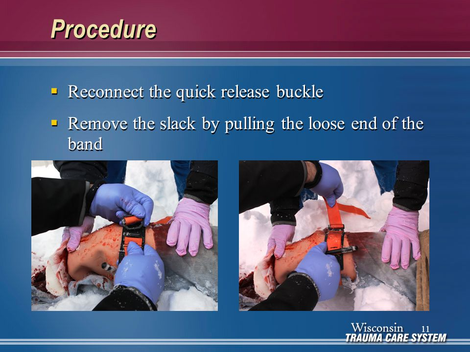 Procedure  Reconnect the quick release buckle  Remove the slack by pulling the loose end of the band  Reconnect the quick release buckle  Remove t