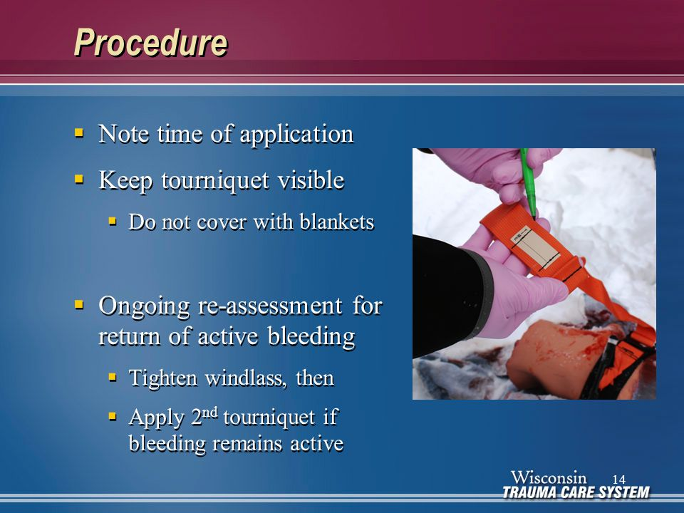 Procedure  Note time of application  Keep tourniquet visible  Do not cover with blankets  Ongoing re-assessment for return of active bleeding  Ti
