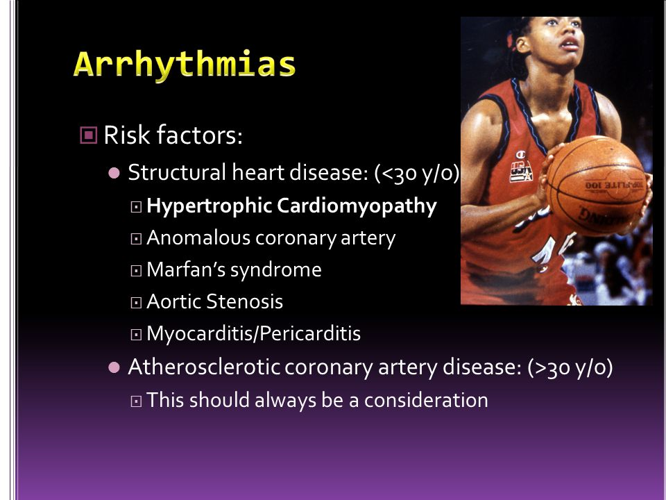 Risk factors: Structural heart disease: (<30 y/o)  Hypertrophic Cardiomyopathy  Anomalous coronary artery  Marfan's syndrome  Aortic Stenosis  Myocarditis/Pericarditis Atherosclerotic coronary artery disease: (>30 y/o)  This should always be a consideration