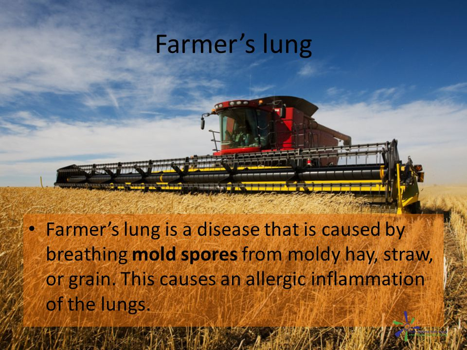 Farmer's lung Symptoms of farmer s lung include: – Fever – Chills – A runny nose – A nonproductive cough – Blood-streaked sputum – Labored or difficult breathing, with a feeling of tightness in the chest.