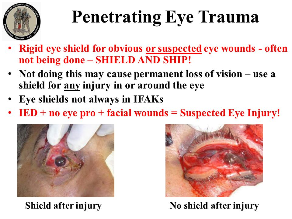 Penetrating Eye Trauma Rigid eye shield for obvious or suspected eye wounds - often not being done – SHIELD AND SHIP! Not doing this may cause permane