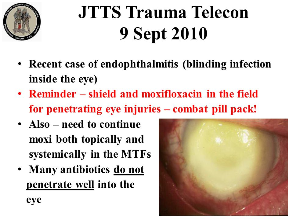 JTTS Trauma Telecon 9 Sept 2010 Recent case of endophthalmitis (blinding infection inside the eye) Reminder – shield and moxifloxacin in the field for penetrating eye injuries – combat pill pack.