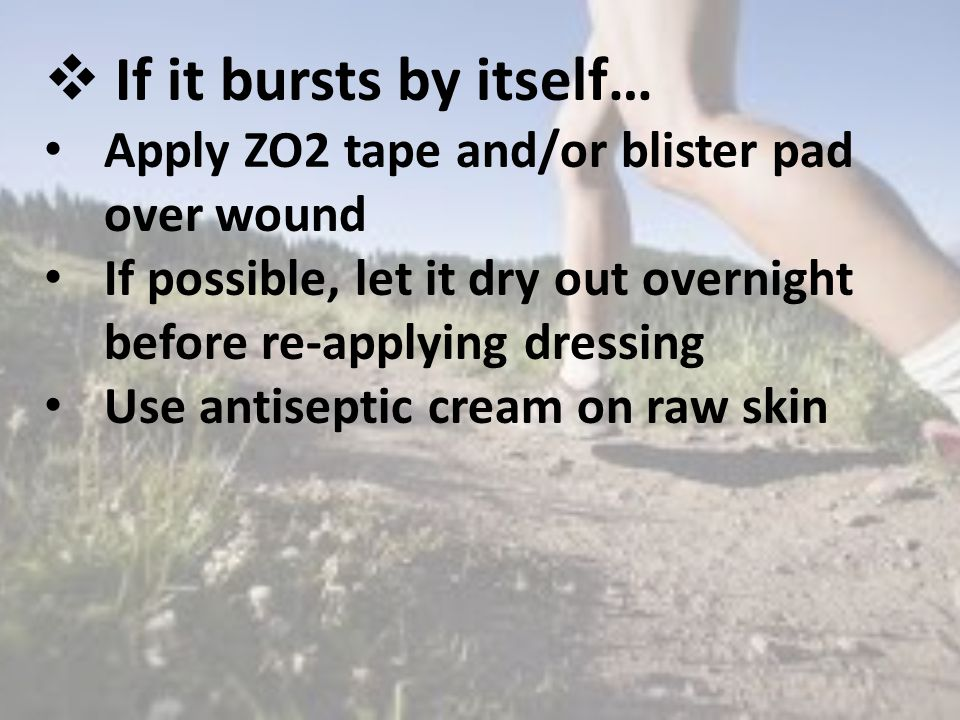  If it bursts by itself… Apply ZO2 tape and/or blister pad over wound If possible, let it dry out overnight before re-applying dressing Use antiseptic cream on raw skin