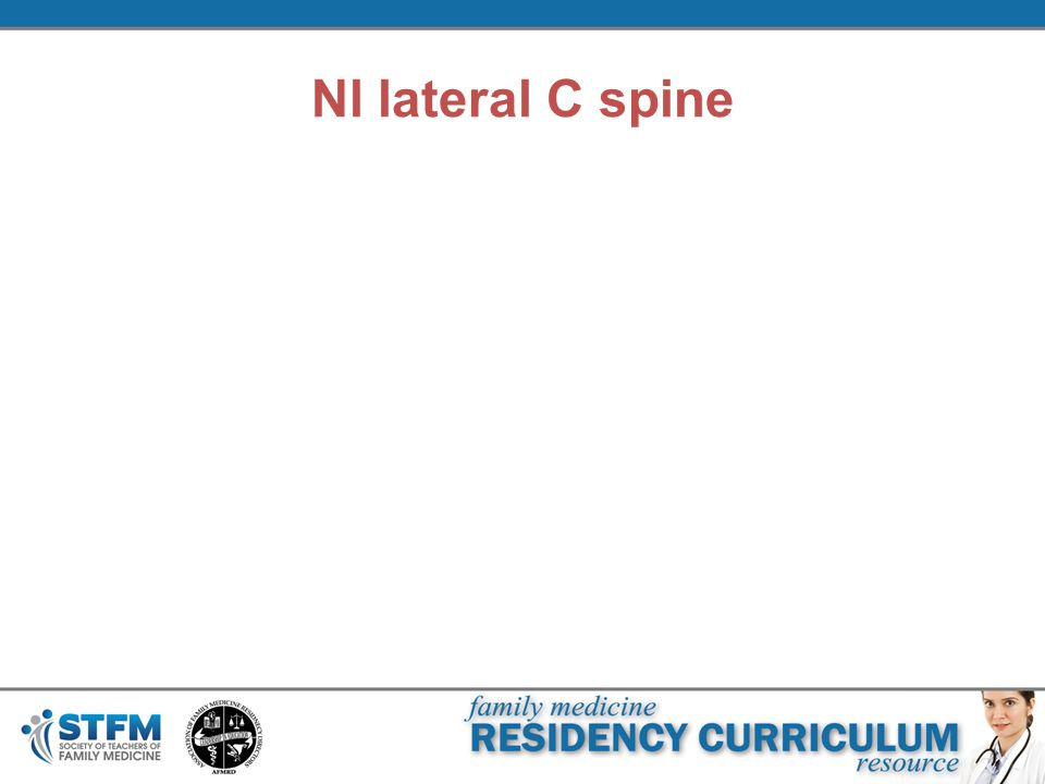 Nl lateral C spine