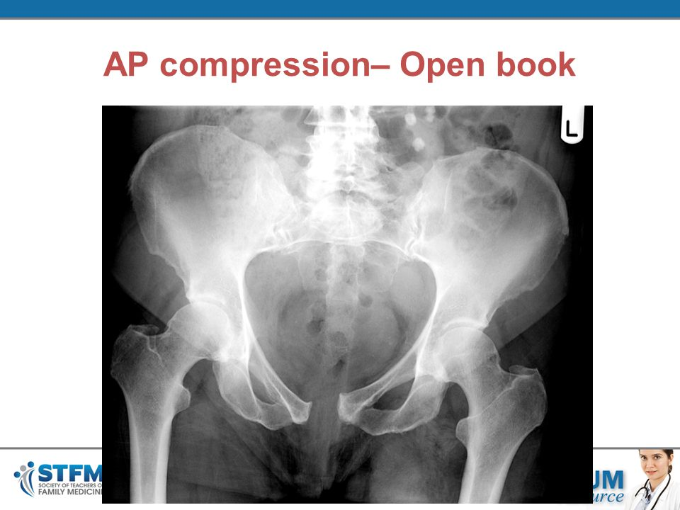AP compression– Open book