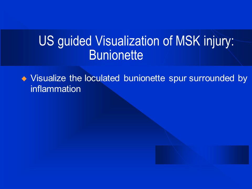 US guided Visualization of MSK injury: Bunionette  Visualize the loculated bunionette spur surrounded by inflammation