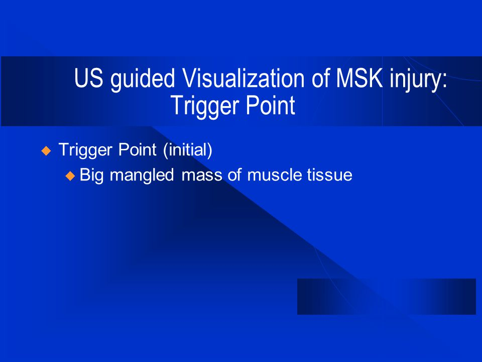 US guided Visualization of MSK injury: Trigger Point  Trigger Point (initial) u Big mangled mass of muscle tissue