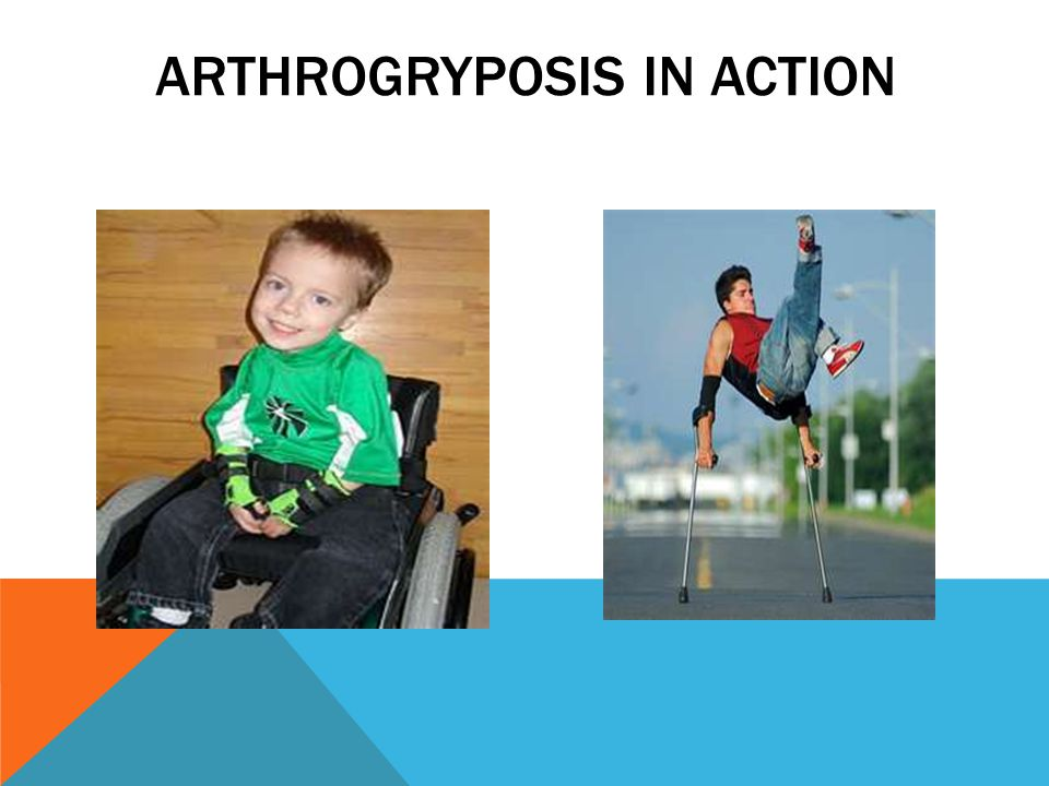 ARTHROGRYPOSIS IN ACTION