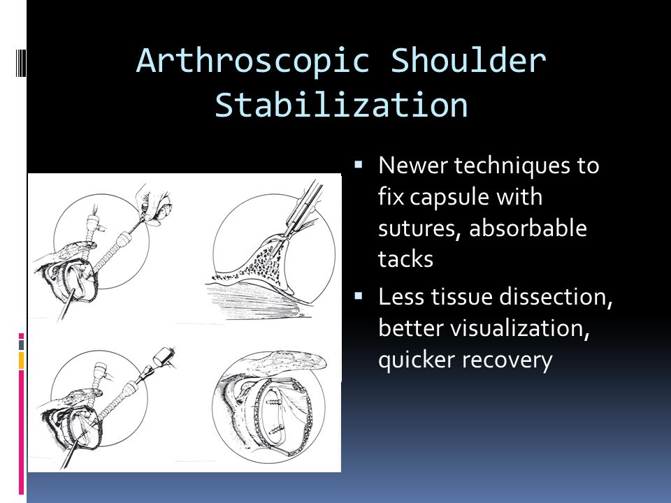 Arthroscopic Shoulder Stabilization  Newer techniques to fix capsule with sutures, absorbable tacks  Less tissue dissection, better visualization, q