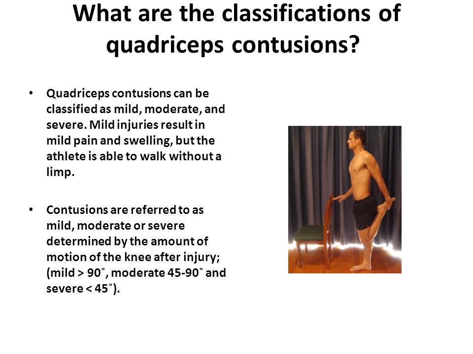 What are the classifications of quadriceps contusions.