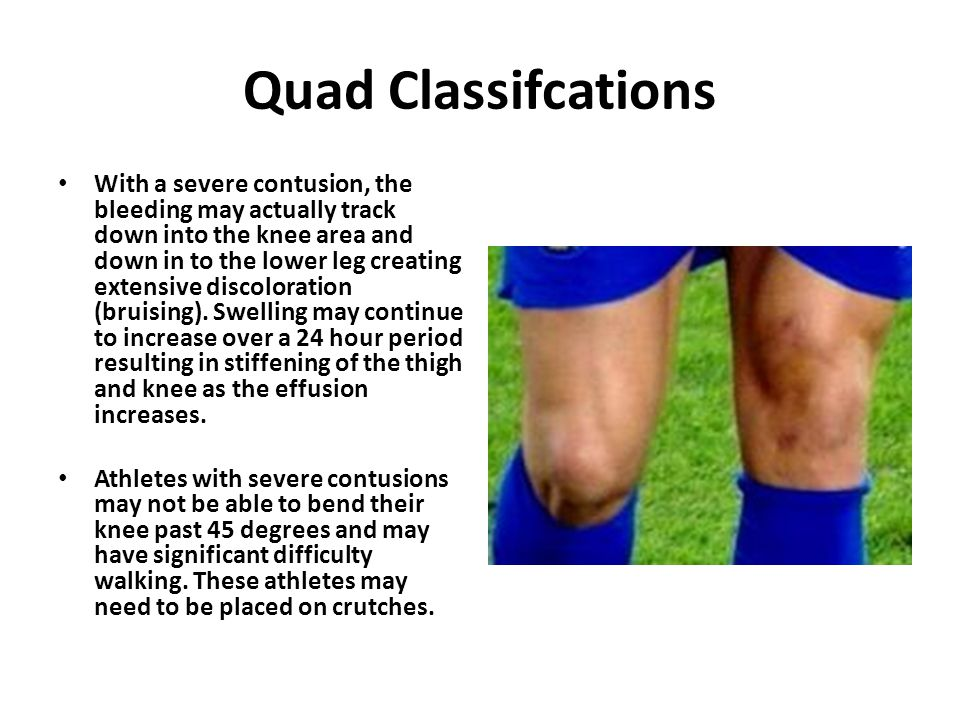Quad Classifcations With a severe contusion, the bleeding may actually track down into the knee area and down in to the lower leg creating extensive discoloration (bruising).