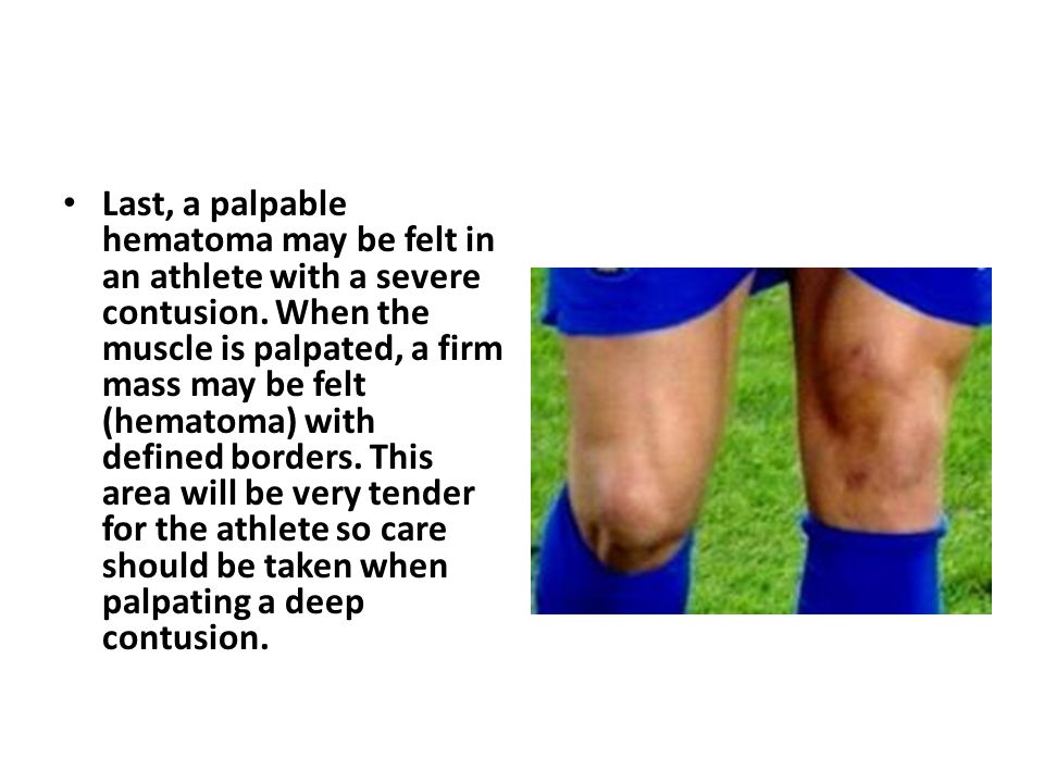 Last, a palpable hematoma may be felt in an athlete with a severe contusion. When the muscle is palpated, a firm mass may be felt (hematoma) with defi
