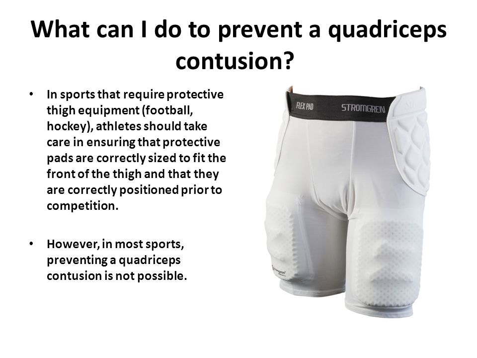 What can I do to prevent a quadriceps contusion.
