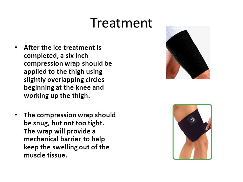 Treatment After the ice treatment is completed, a six inch compression wrap should be applied to the thigh using slightly overlapping circles beginning at the knee and working up the thigh.