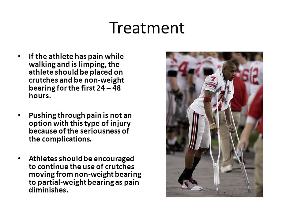 Treatment If the athlete has pain while walking and is limping, the athlete should be placed on crutches and be non-weight bearing for the first 24 – 48 hours.