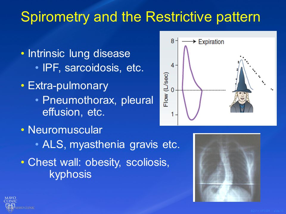 ©2014 MFMER | slide-10 Spirometry and the Restrictive pattern Intrinsic lung disease IPF, sarcoidosis, etc.