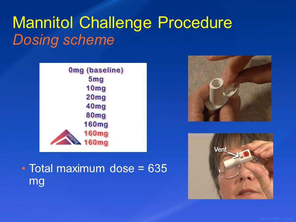 ©2014 MFMER | slide-20 Mannitol Challenge Procedure Dosing scheme Total maximum dose = 635 mg