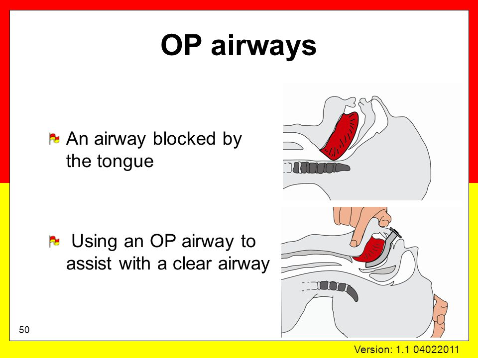 Version: 1.1 04022011 OP airways An airway blocked by the tongue Using an OP airway to assist with a clear airway 50