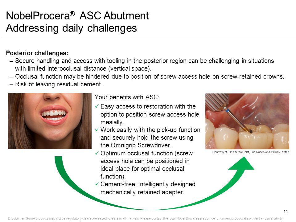 NobelProcera ® ASC Abutment Addressing daily challenges 11 Disclaimer: Some products may not be regulatory cleared/released for sale in all markets. P