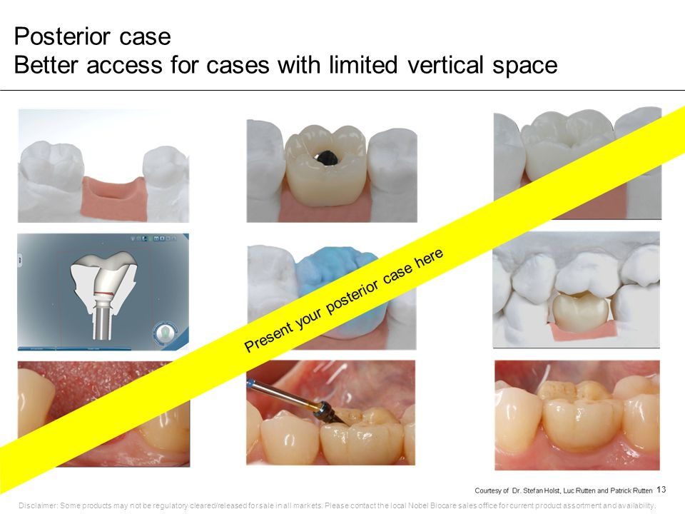 Posterior case Better access for cases with limited vertical space 13 Disclaimer: Some products may not be regulatory cleared/released for sale in all