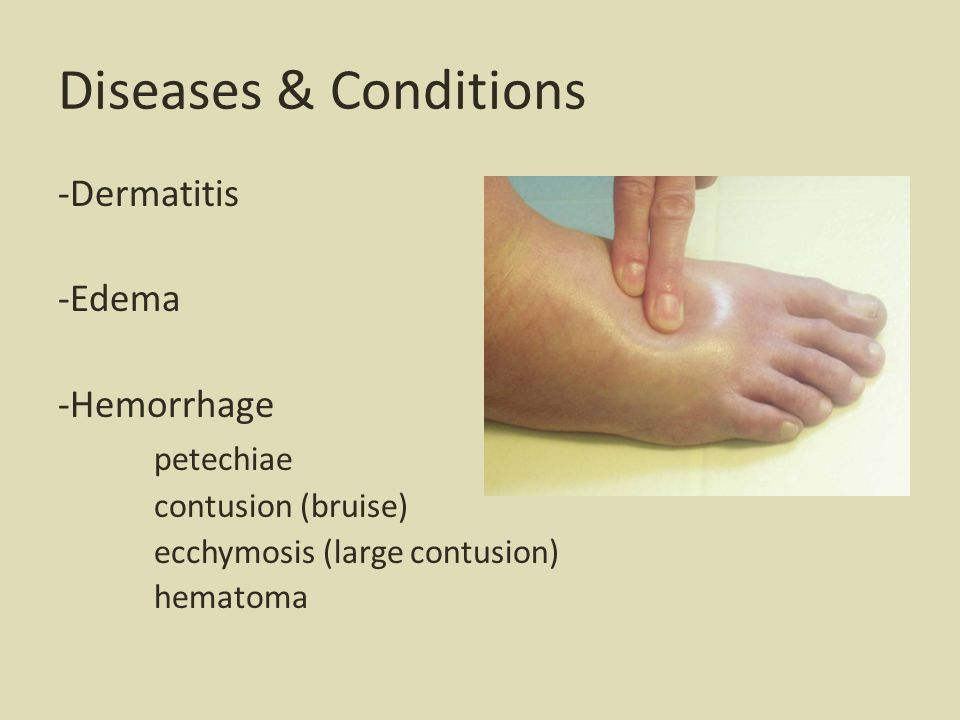 Diseases & Conditions -Dermatitis -Edema -Hemorrhage petechiae contusion (bruise) ecchymosis (large contusion) hematoma