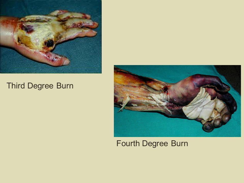Third Degree Burn Fourth Degree Burn
