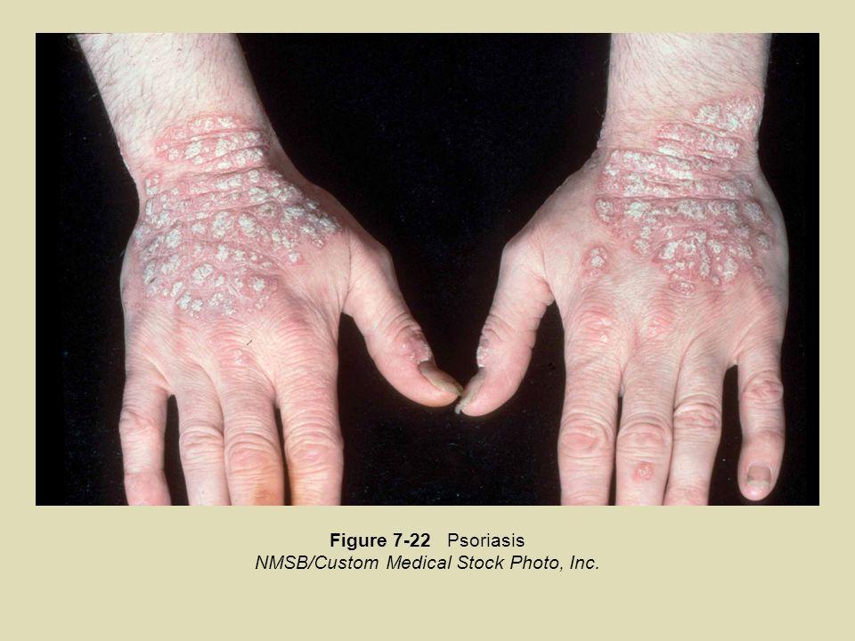 Figure 7-22 Psoriasis NMSB/Custom Medical Stock Photo, Inc.