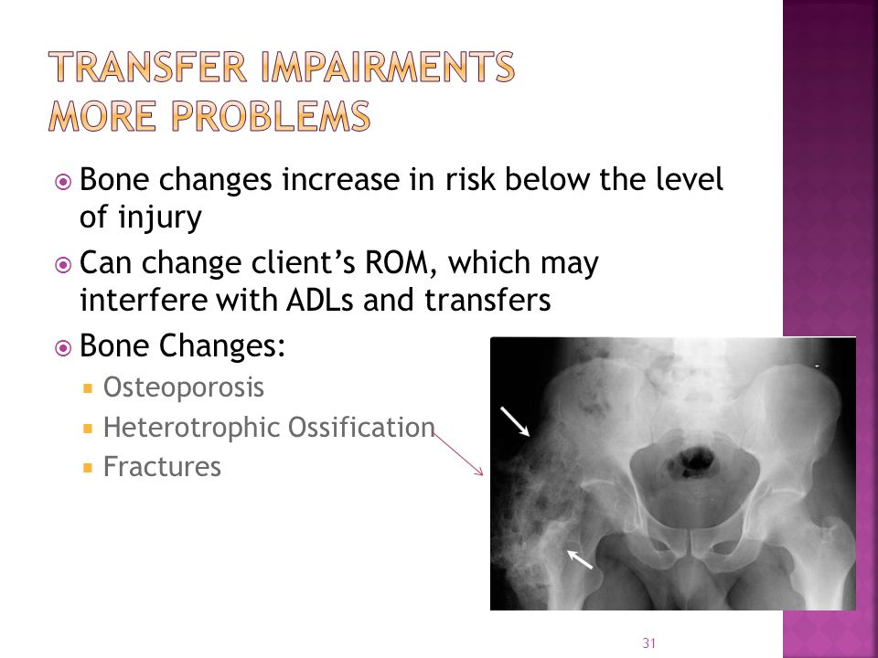  Bone changes increase in risk below the level of injury  Can change client's ROM, which may interfere with ADLs and transfers  Bone Changes:  Osteoporosis  Heterotrophic Ossification  Fractures 31