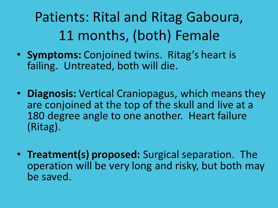 Patients: Rital and Ritag Gaboura, 11 months, (both) Female Symptoms: Conjoined twins.