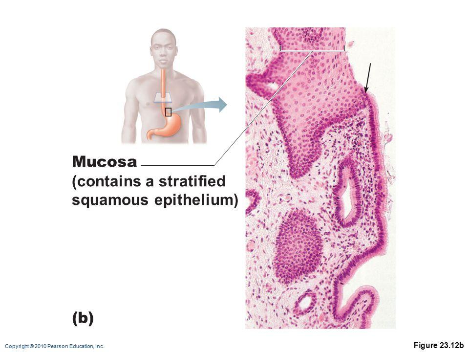 Copyright © 2010 Pearson Education, Inc. Go to GI Diseases (Esophagus)