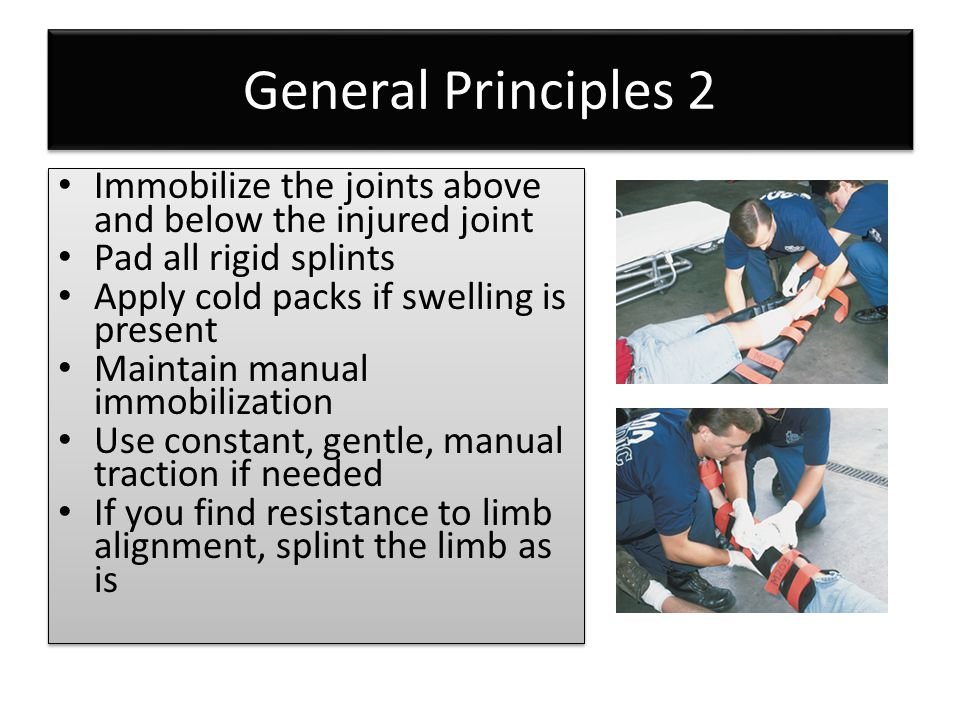 General Principles 2 Immobilize the joints above and below the injured joint Pad all rigid splints Apply cold packs if swelling is present Maintain ma